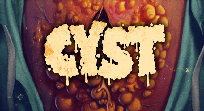 CYST - AUSTRALIAN PREMIERE SCREENING EVENT